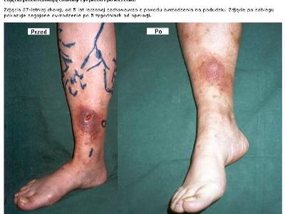 zmiany skórne w zzawansowanej niewydolności  żylnej - kliknij, aby powiększyć