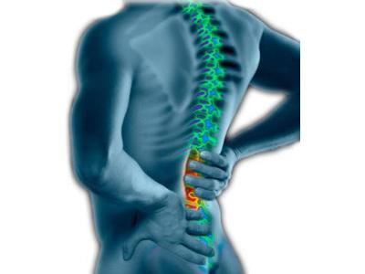 Ból kręgosłupa - kliknij, aby powiększyć